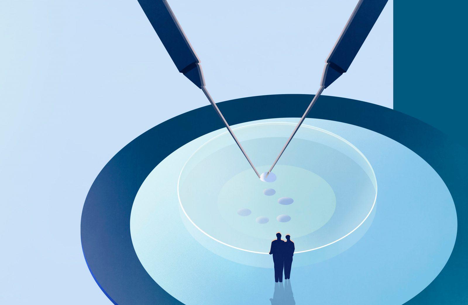 Інтрацитоплазматична ін'єкція сперматозоїда (ІКСІ)
